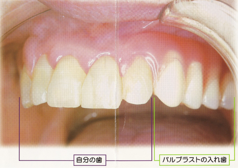 金属のバネのない入れ歯 -エステデンチャー-