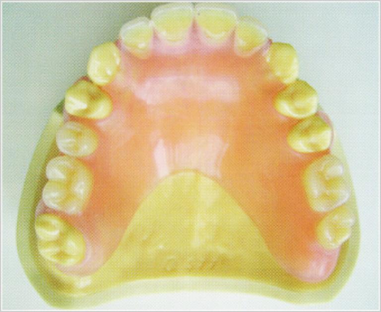 エステデンチャーの入れ歯