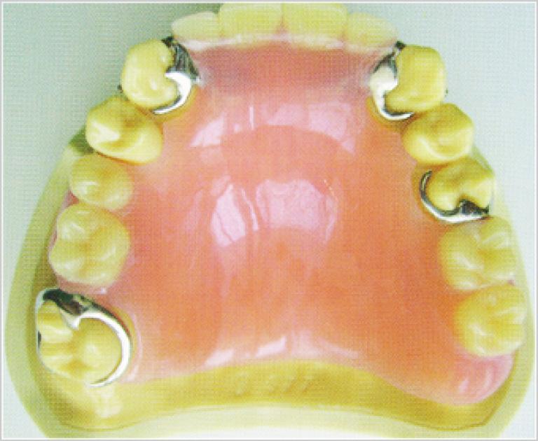 バネ式の入れ歯