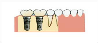 臼歯部から歯が欠損している場合
